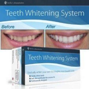 Bella Teeth - opinioni - prezzo