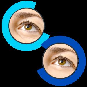 Effetti collaterali - fa male - contraindicazioni- EyeLift