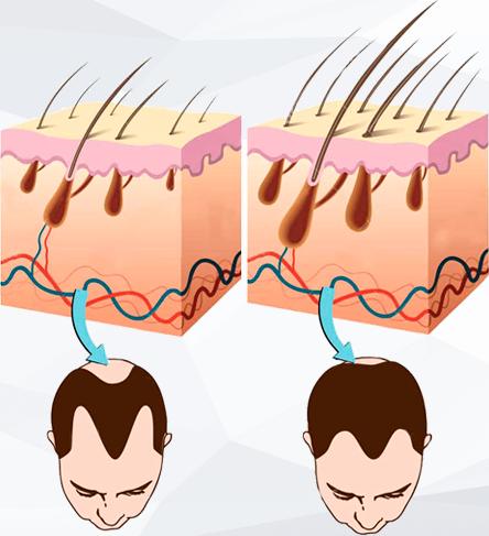 Contraindicazioni - fa male - effetti collaterali - Lpe-Massager