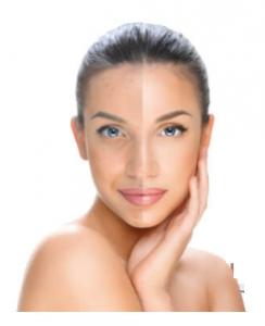 Clear Skin - Effetti collaterali - contraindicazioni - fa male
