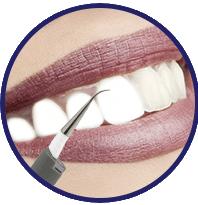 Contraindicazioni - effetti collaterali - fa male - DentaPulse