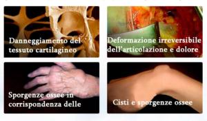 Italia - opinioni - forum - funziona - recensioni - chi l'ha provato - Arthromagic