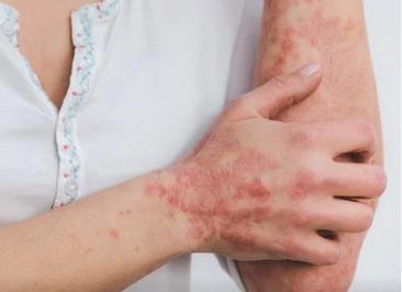 Contraindicazioni - effetti collaterali - fa male - Sunsara Psoriasis