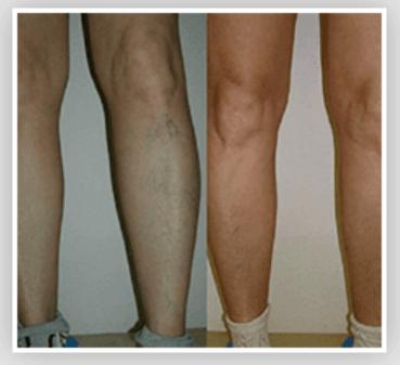 Fa male - effetti collaterali - contraindicazioni - Ultraven